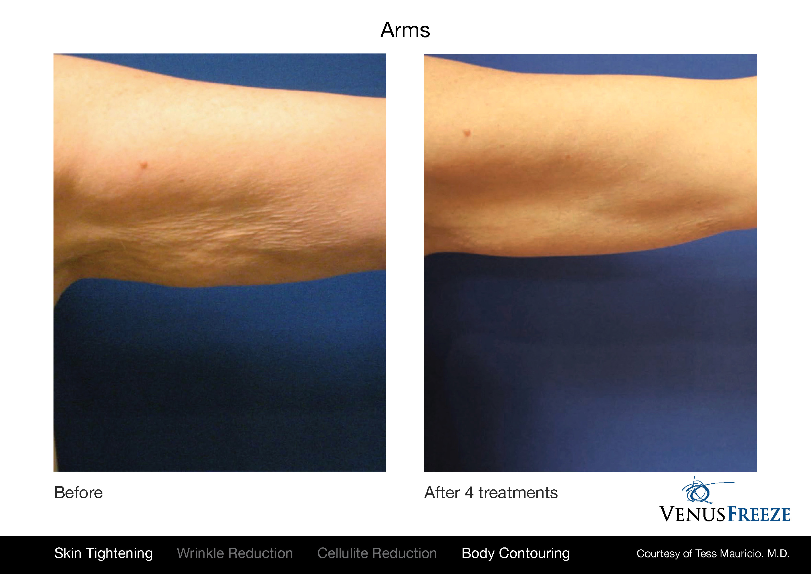Venus Freeze before and after results on arms