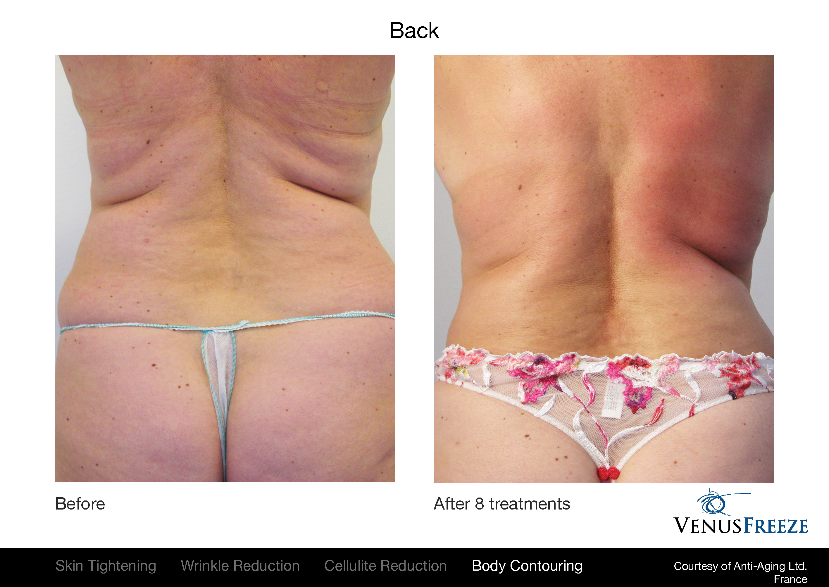 Venus Freeze before and after results on body, and back.