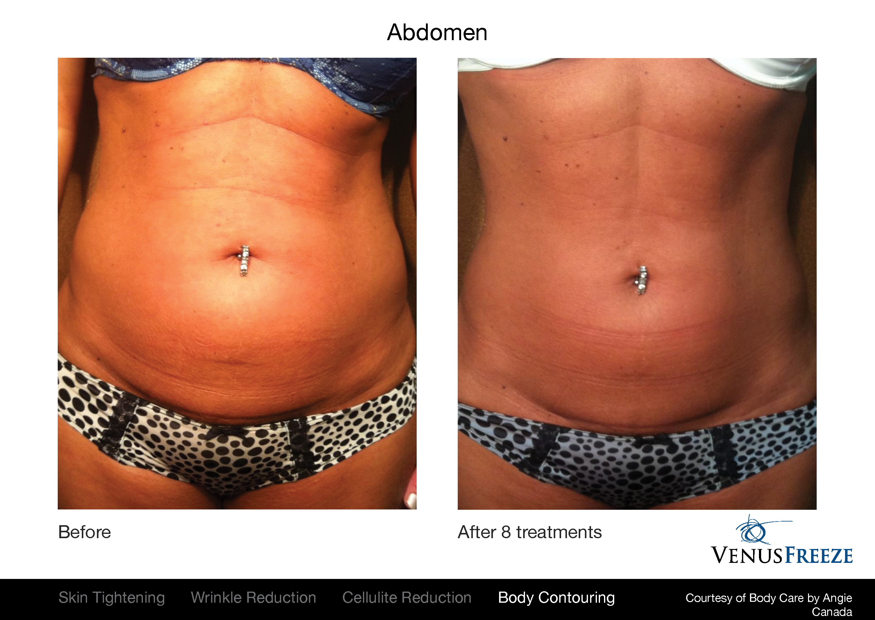 Venus Freeze before and after results on body, and stomach.