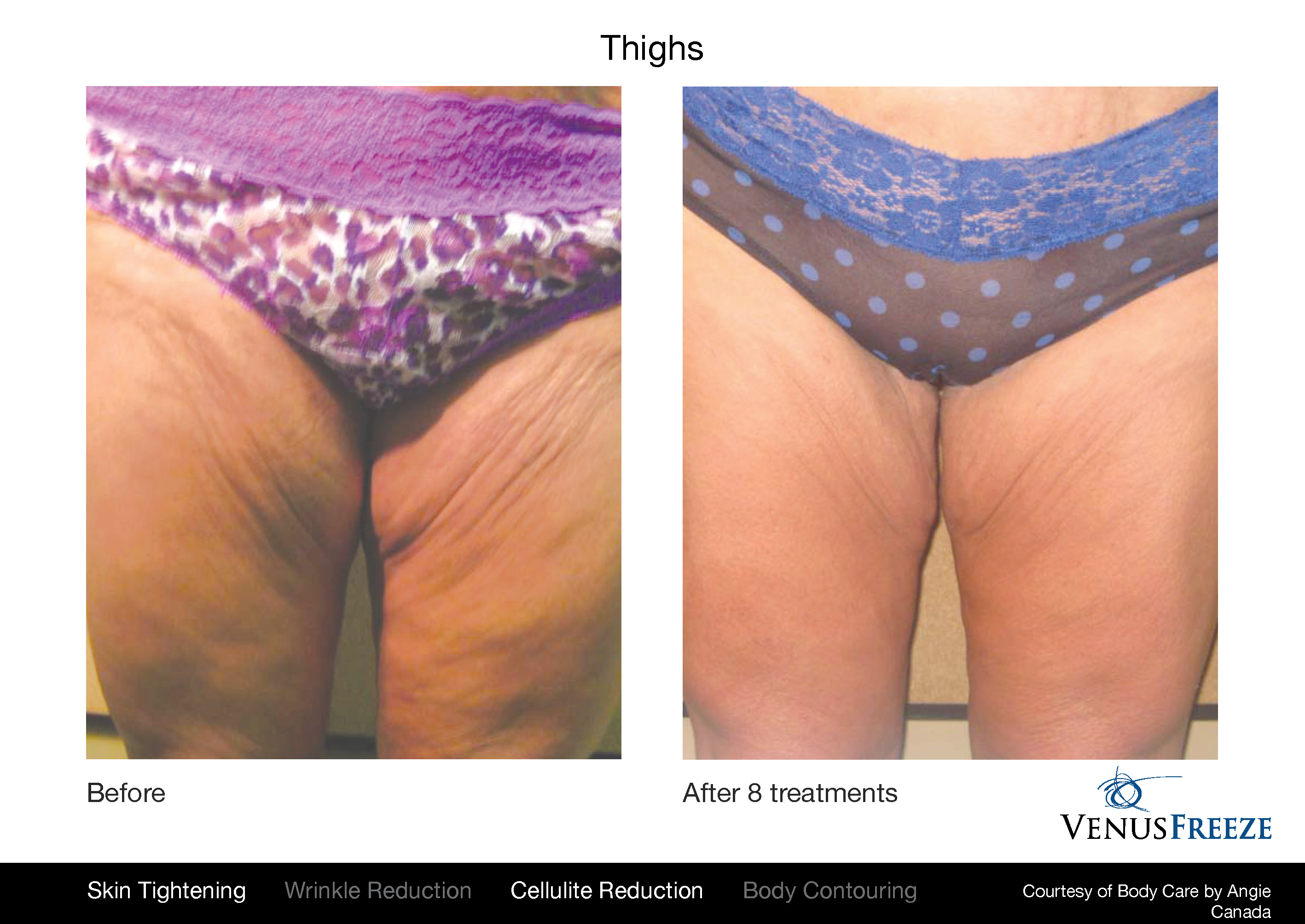 Venus Freeze before and after results on body, and thighs
