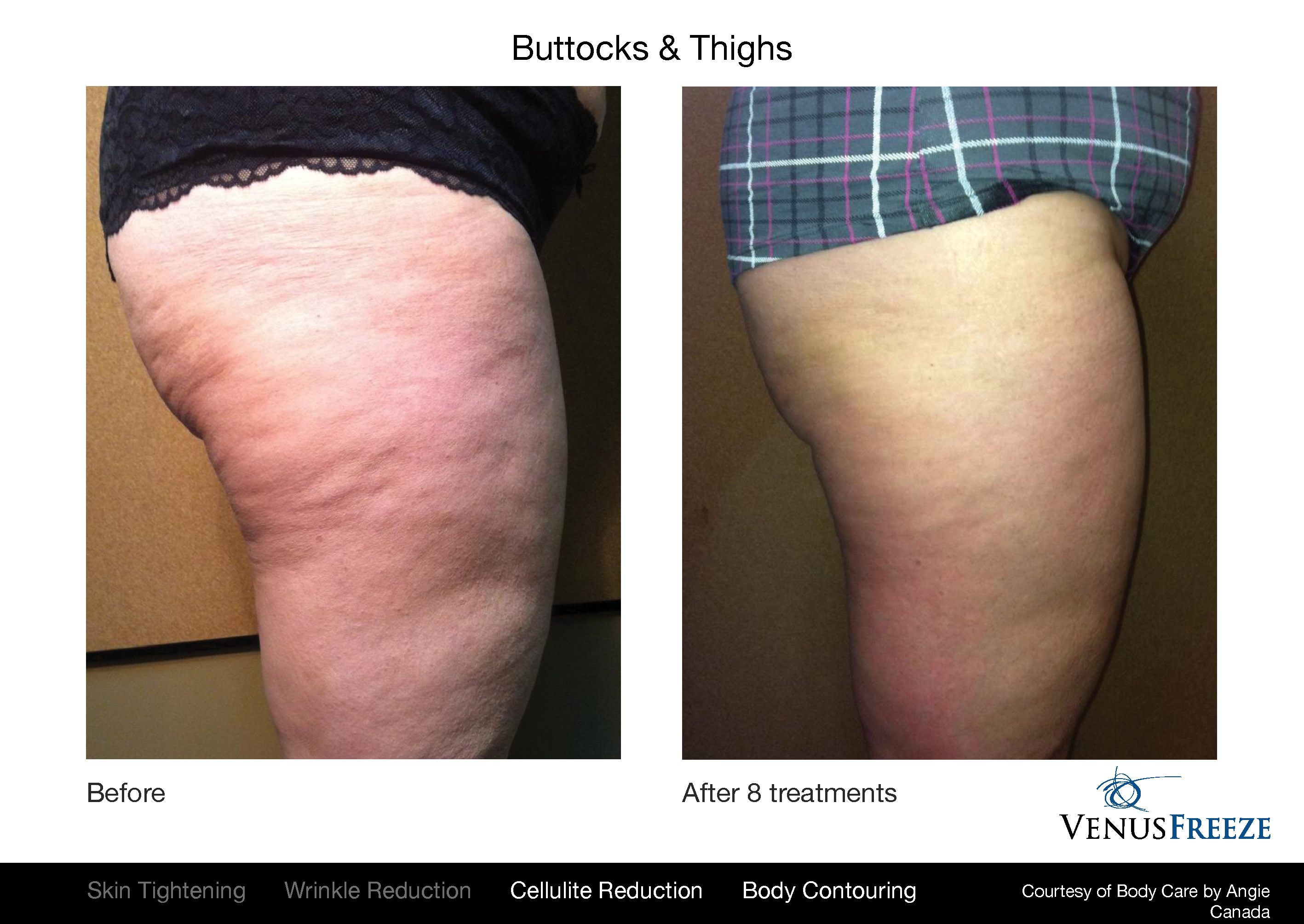 Venus Freeze before and after results on body, butt, and thighs.