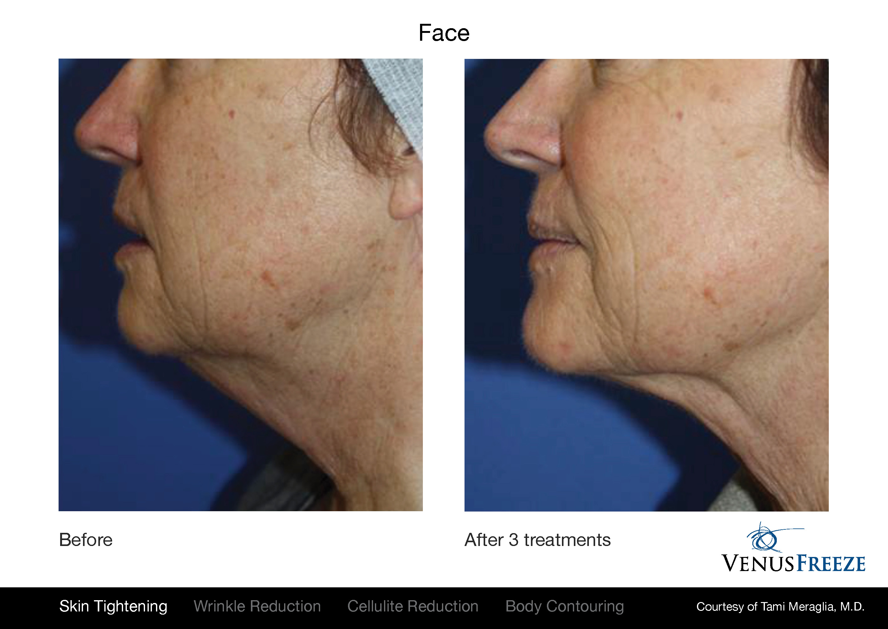Venus Freeze before and after results on face, neck, and chin.