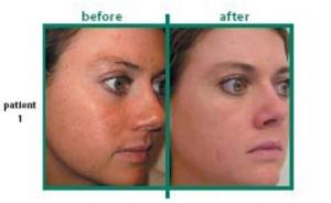 AFA facial peel