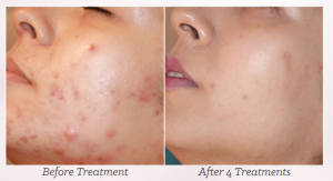 mesotherapy microneedling