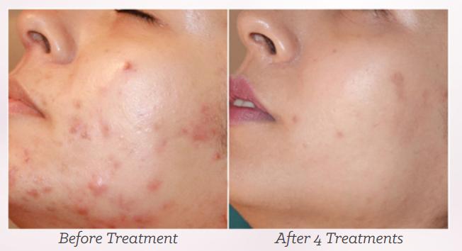 Come liberarsi da pori allargati su una faccia e su un naso